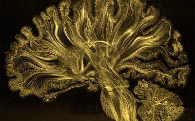 Neural Dynamics of Creativity